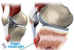 Thuốc cơ xương khớp nên được sử dụng theo chỉ định của bác sĩ