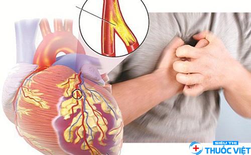 Tìm hiểu các phương pháp điều trị bệnh động mạch vành hiệu quả