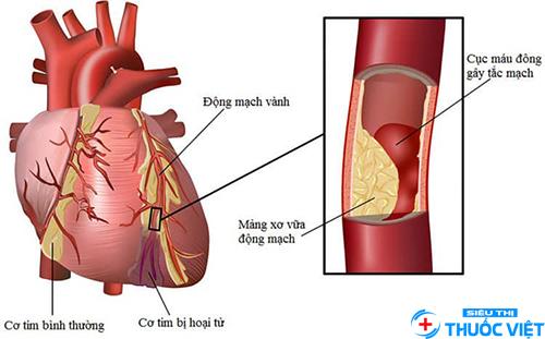 Phương pháp điều trị bệnh động mạch vành nhờ phẫu thuật