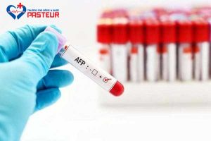 Xét nghiệm alpha – fetoprotein (AFP) ở phụ nữ mang thai