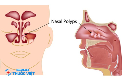Thuốc tai mũi họng Mekorox 150 điều trị viêm hô hấp hiệu quả