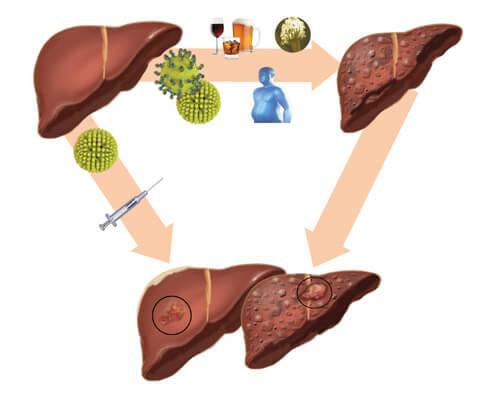 Con đường lây nhiễm viêm gan B và C