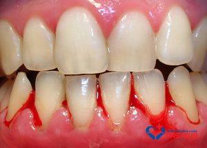 Điều trị chảy máu chân răng bằng cách nào?