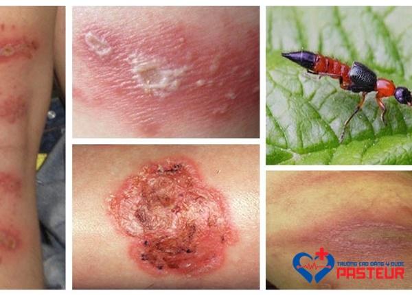 Triệu chứng biểu hiện khi bị kiến ba khoang đốt là gì?