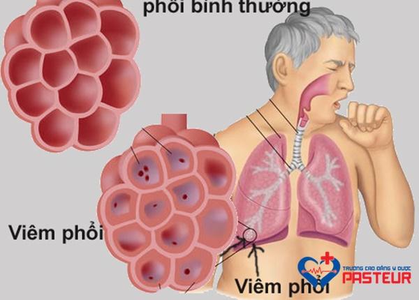 Viêm phổi bệnh viện là gì?